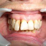 Terrain parodontal affaibli, besoin de solidariser les dents pour assurer leur pérennité dasn le temps