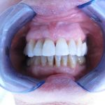 Fin de traitement orthodontique sur terrain parodontal affaibli