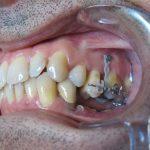 Mise en place de minivis pour réingresser les dents supérieures