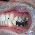 Après ingression des dents supérieures, les implants mandibulaires sont posés