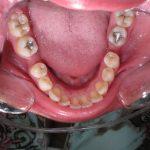 Photo arcade inférieure avant traitement, perte/extraction des 1ères molaires inférieures