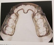 Appareil propulsion mandibulaire PUL