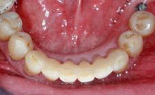 Attelle fibrée après traitement orthodontique