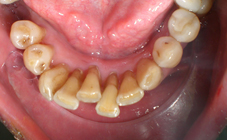 Attelle fibrée avant traitement orthodontique