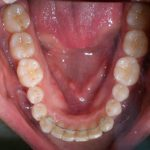 Traitement par gouttière Invisalign cas n°2 fin de traitement